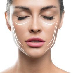 Face lift treatment anti aging skincare woman concept. woman face with lifting lines on white background