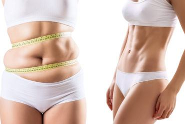Collage of female body before and after weight loss over white background.